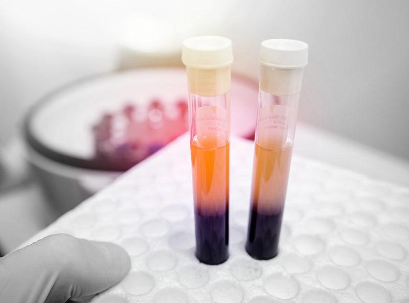 Plasma rico en plaquetas Alicante Denia