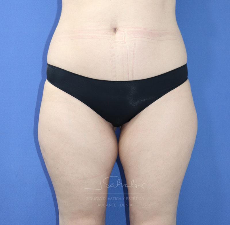 liposuccion1-frente-antes-ok
