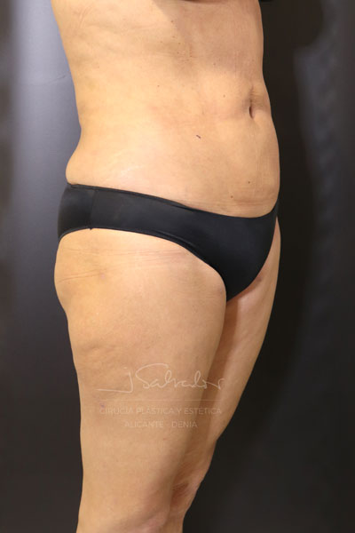 costadoder-post-vaserlipo1-op