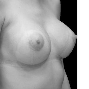 cirugia-secundaria-mama