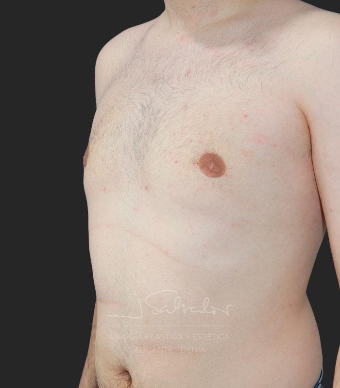 Ginecomastia lado izquierdo antes