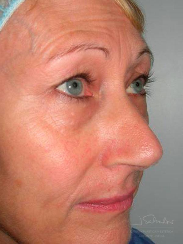 Blefaroplastia 1 lado derecho antes