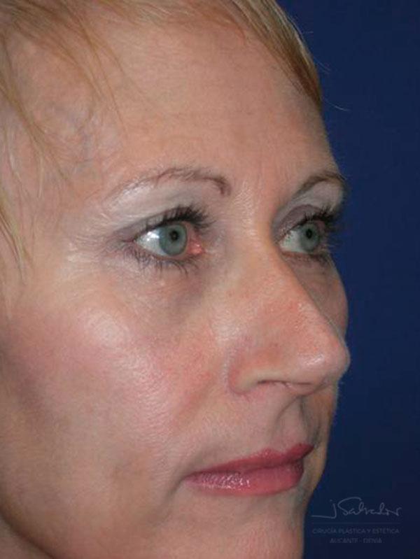 Blefaroplastia 1 lado derecho después