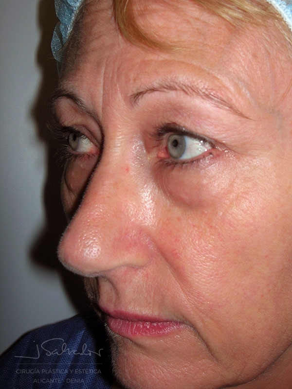 Blefaroplastia 1 lado izquierdo antes