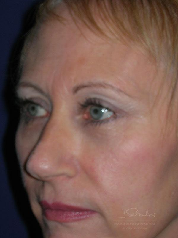 Blefaroplastia 1 lado izquierdo después