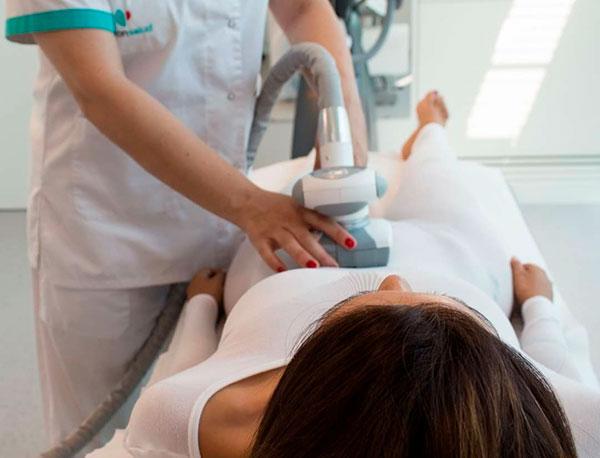 Tratamiento VelaShape en Alicante