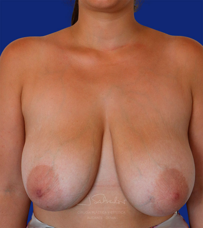 Caso real cirugía reducción mamas