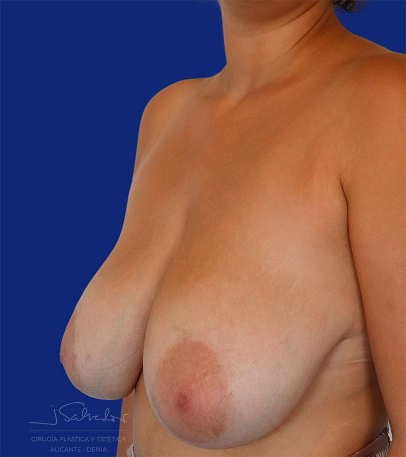 Caso Pre-post cirugía reducción de mama