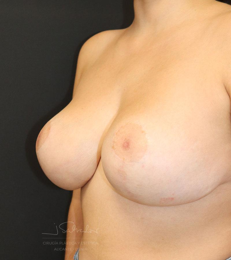 Caso Pre-post cirugía reducción mamas en Alicante