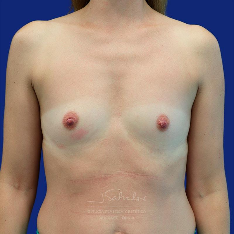 mamoplastia-caso7-frente-antes