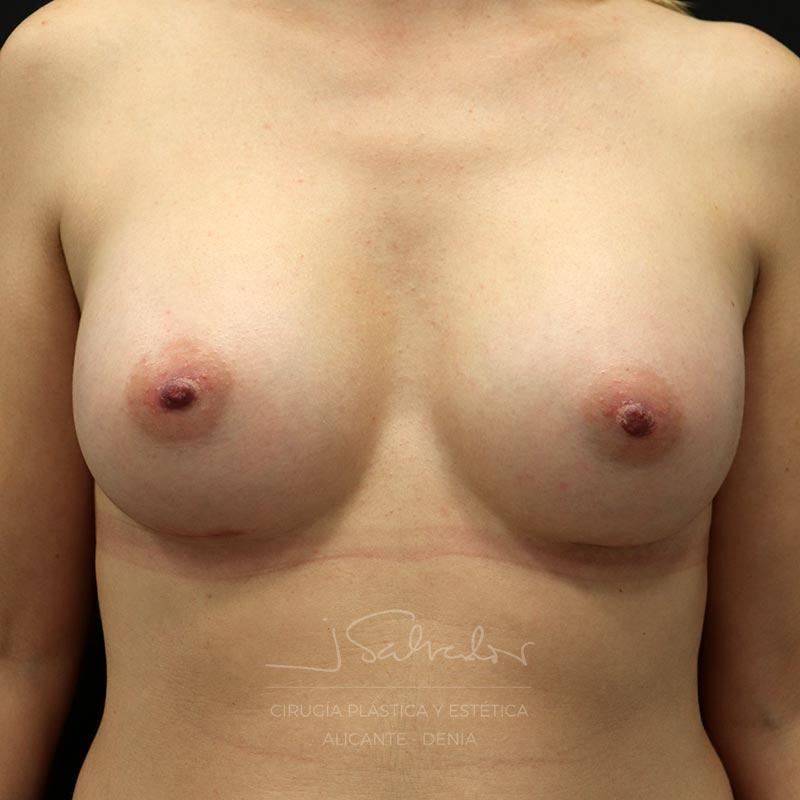 mamoplastia-caso7-frente-despues