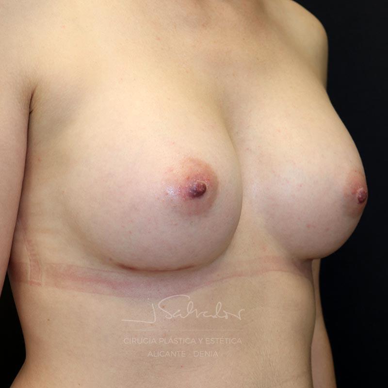 mamoplastia-caso7-ladoder-despues