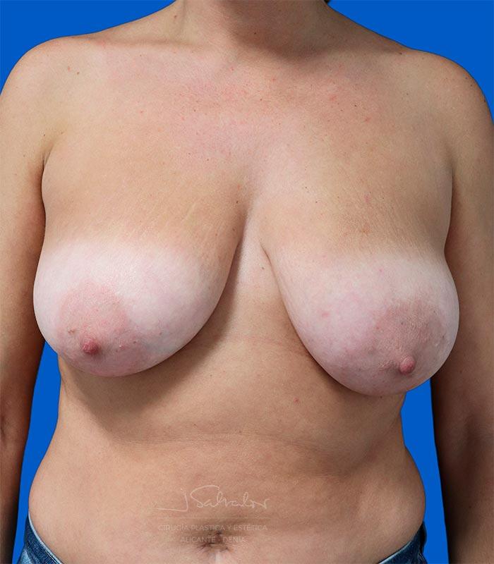 reduccion-mama-alicante2-frente-antes-ok